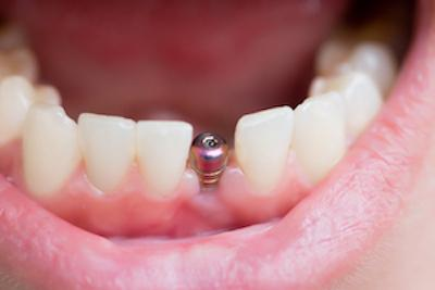 mouth with dental implant