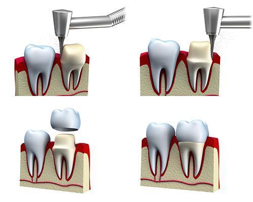 Dental Crowns and Bridges Toowoomba QLD   L&R Dental