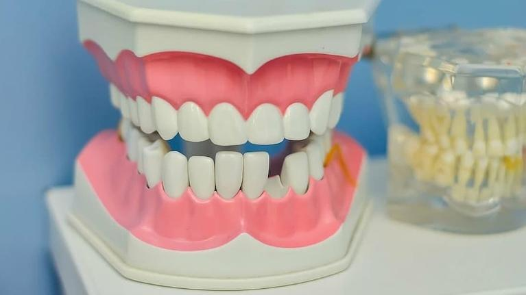 Gums and teeth model - gum treatment Toowoomba